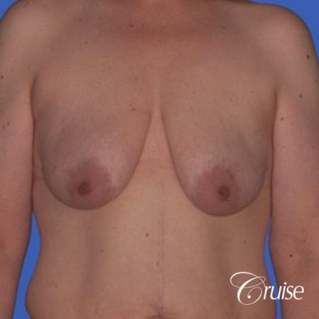 best photos of breast lift anchor on 39 yr old - Before Image 1