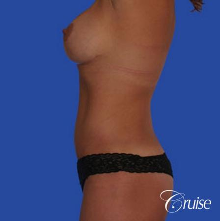 mommy makeover with best breast lift anchor with saline implants -  After Image 2