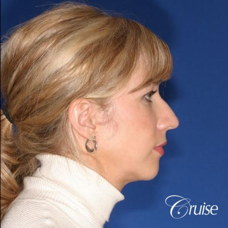 female patient with best chin implant scar - Before and After Image 4