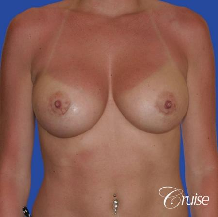 breast revision with silicone implant rupture -  After Image 1