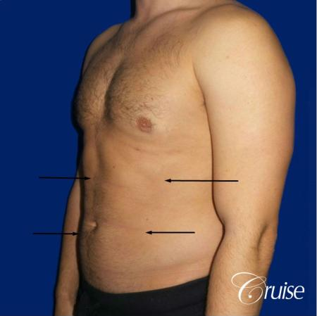 Liposuction Abdomen - After Image 2