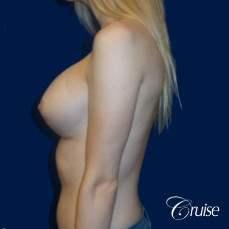 Breast Lift before and after Orange County -  After Image 4