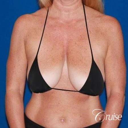 Breast Lift - Saline Augmentation - Before and After Image 4