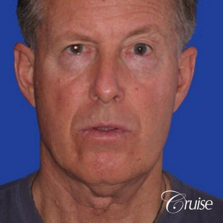62 year old with chin implant and neck lift - Before Image 1