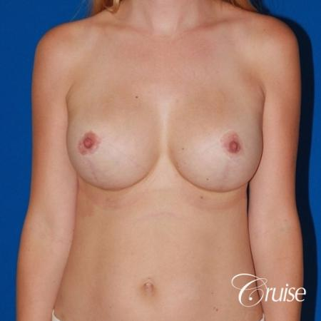 best breast lift anchor with High profile silicone 500cc implants -  After 1