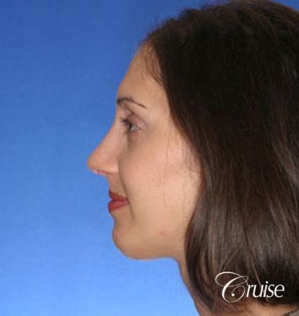 29 yr old with large female chin augmentation -  After Image 2