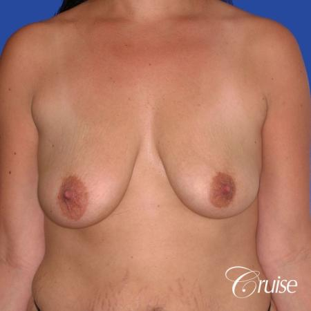 best scars on saline breast lift with top plastic surgeon in Newport Beach - Before Image 1