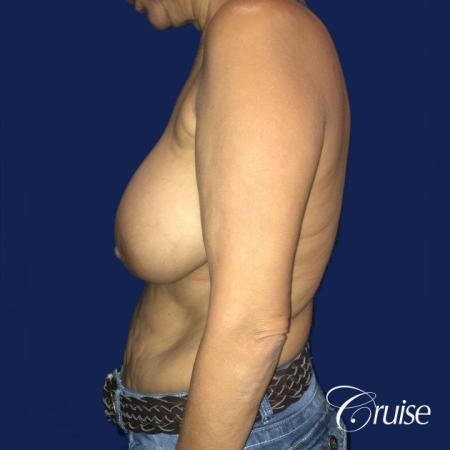 Best Breast reduction results and recovery - Before Image 2