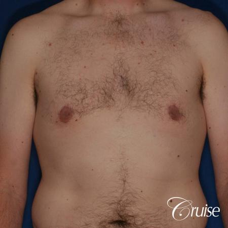 adult male with moderate gynecomastia gets donut lift -  After Image 1