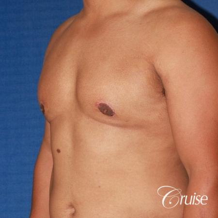 donut lift gynecomastia moderate adult -  After Image 2