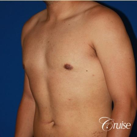 puffy nipple on 26 year old with gynecomastia -  After Image 2
