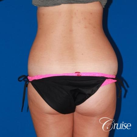 liposuction love handles and tummy - Before Image 4