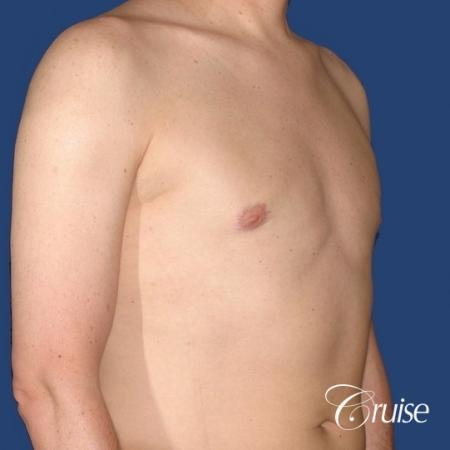 moderate gynecomastia on adult donut lift -  After Image 4