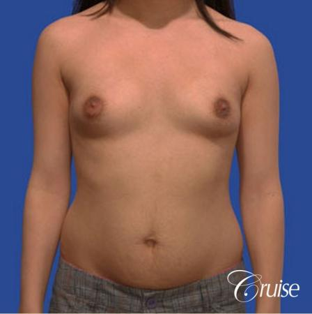 best pictures of low mini tuck and breast augmentation Newport Beach - Before Image 1