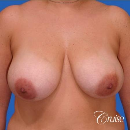 before and after pictures of saline breast lift - Before Image 1