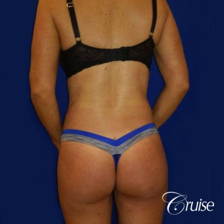 Brazilian Butt Lift Dr. Cruise - After Image