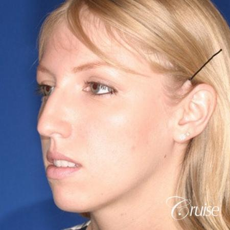 young female with large anatomic chin implant - Before Image 3
