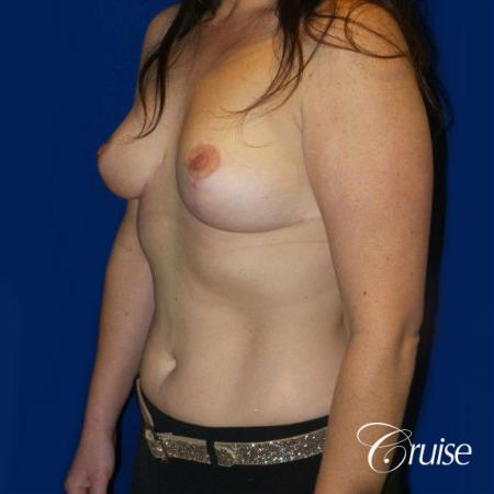 Breast Reduction No Implants - After Image 2