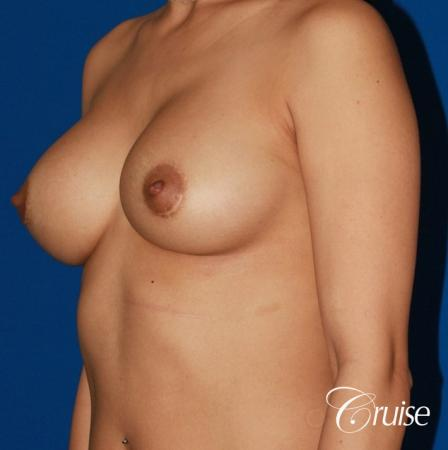 saline capsular contracture breast revision pictures -  After Image 2