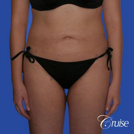 best full body liposuction abdomen flanks thighs knees - After Image
