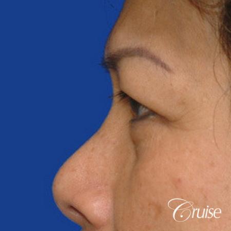 best Asian Upper eye lid plastic surgeon Newport Beach - Before Image 2
