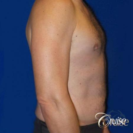 Best Gynecomastia surgeons Los Angeles -  After Image 3