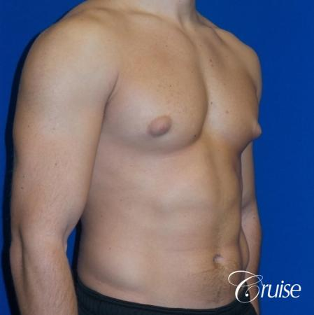 male breast reduction surgery newport beach - Before Image 2