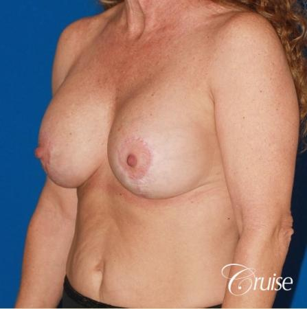 best high profile silicone breast lift 425cc -  After Image 3