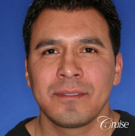 chin augmentation orange county -  After Image 1