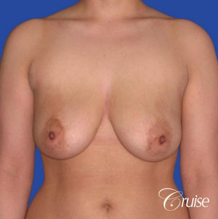 best round saline implants after breast reduction - Before Image 1