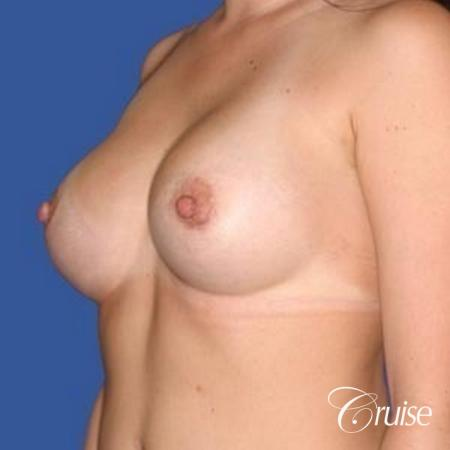 best surgeon for breast revision capsular contracture -  After Image 3