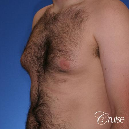 best Puffy nipple correction and gynecomastia on young adult - Before and After Image 3