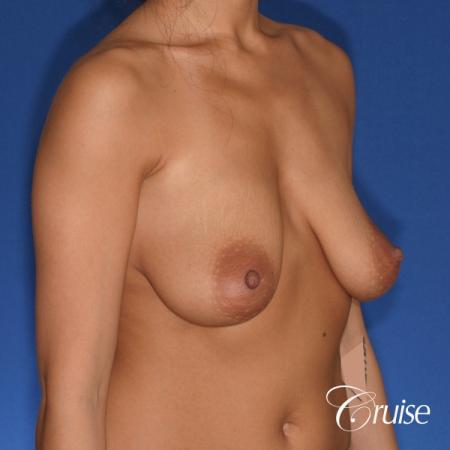 best breast lift anchor with silicone augmentation in Orange County - Before Image 3