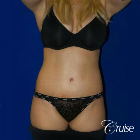 Tummy Tuck Standard Incision - After Image 1