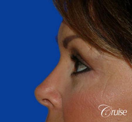 best blepharoplasty eye surgery photos -  After Image 2
