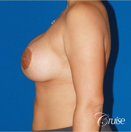 best before and after photos of young breast lift anchor scars -  After Image 2