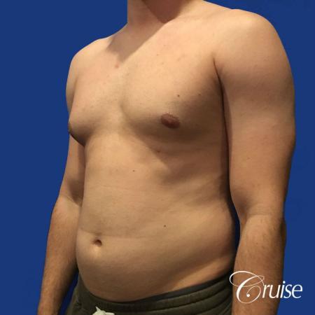 Moderate Gynecomastia -Puffy Nipple -Areola Incision - Before Image 2