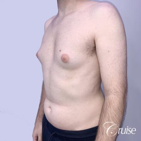 Gynecomastia: Patient 128 - Before 3