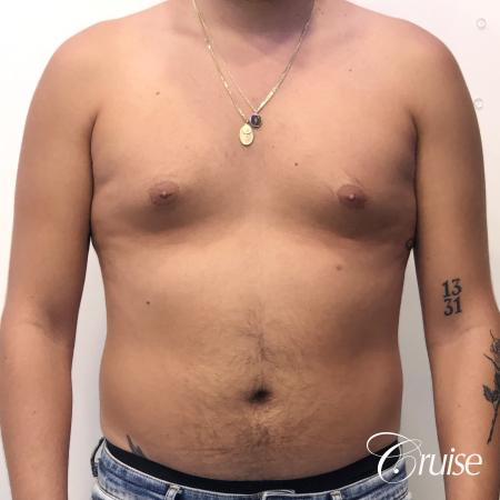 gynecomastia correction orange county - Before 1