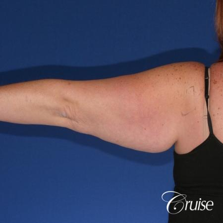 best recovery and photos of arm lift orange county - Before Image 1