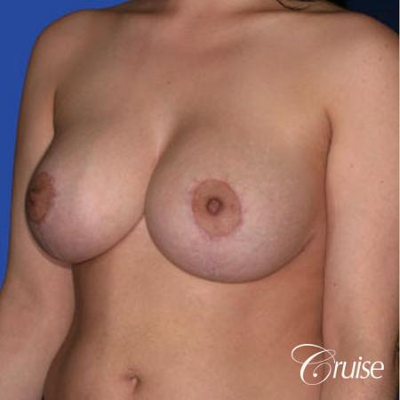 best round saline implants after breast reduction -  After 3
