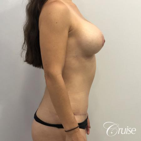 Breast Augmentation, Tummy Tuck -  After Image 4