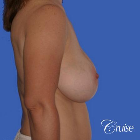 pictures of 42 yr old with breast lift anchor revision - Before Image 3