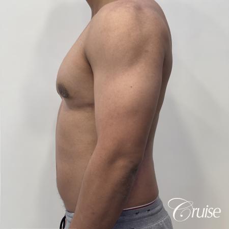 gynecomastia surgery -  After 2