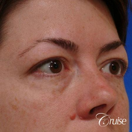 blepharoplasty specialist - Before Image 3