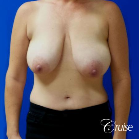 Breast Reduction No Implants - Before Image