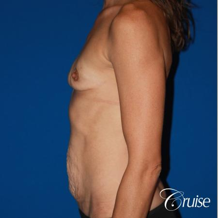 best ultra low tummy tuck scar with breast augmentation - Before Image 2