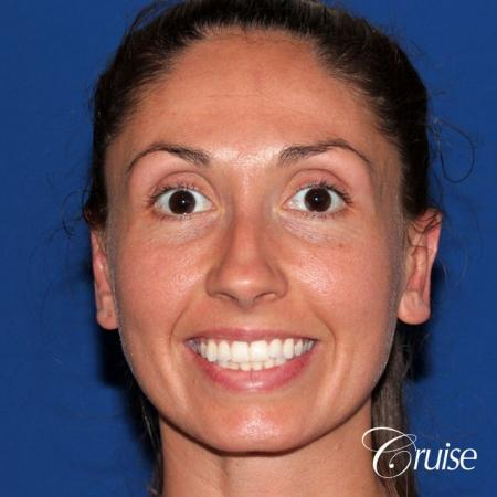 best adult otoplasty on women -  After Image 1