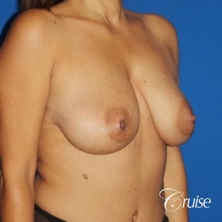 best saline breast lift with 470cc implants - Before and After Image 3