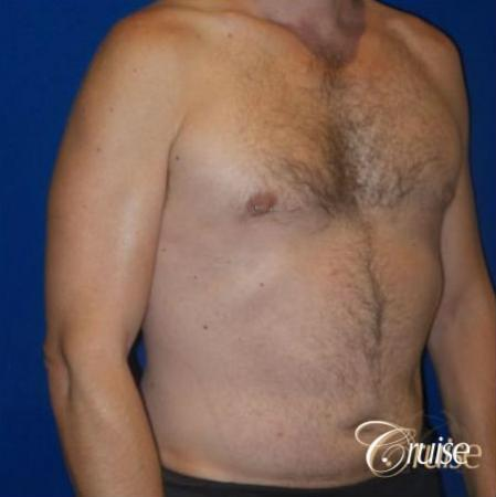 Best Gynecomastia surgeons Los Angeles -  After Image 2